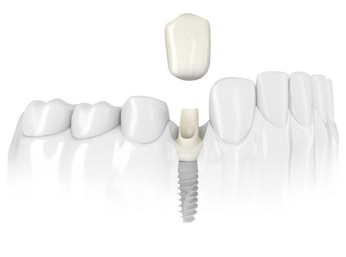 Diagram of a jaw with a dental implant.